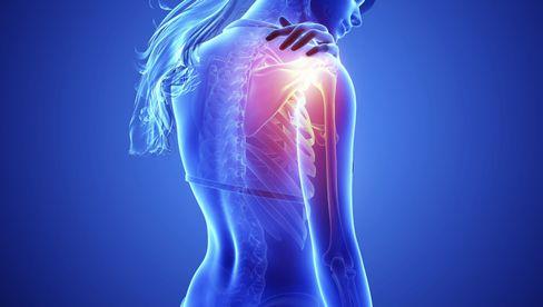 Armschmerzen Nach Impfung