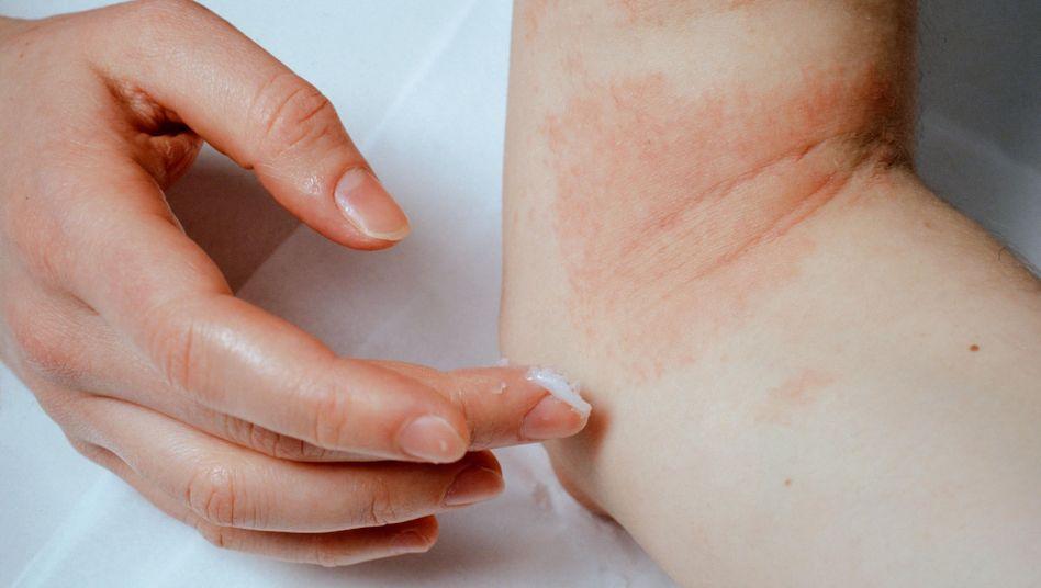 Kontaktallergie: Bei jeder Berührung mit dem Allergen entsteht ein Ekzem