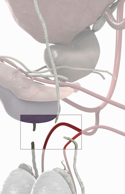 NICHT MEHR VERWENDEN! - GRAFIK Vasektomie / Sterilisation