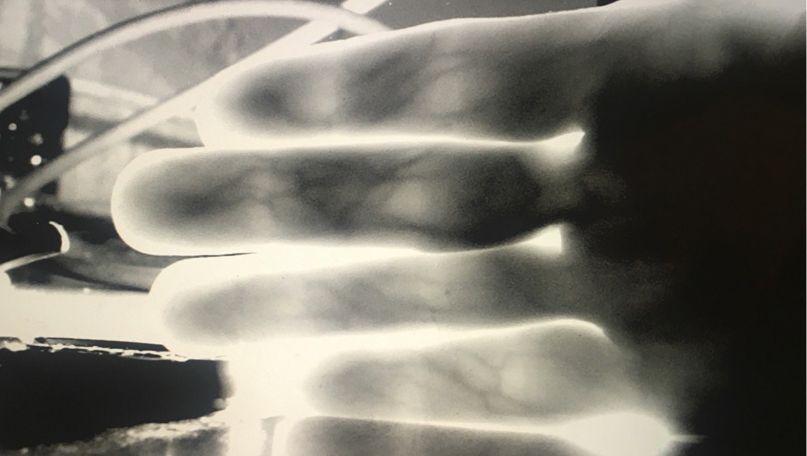 Fingervenen