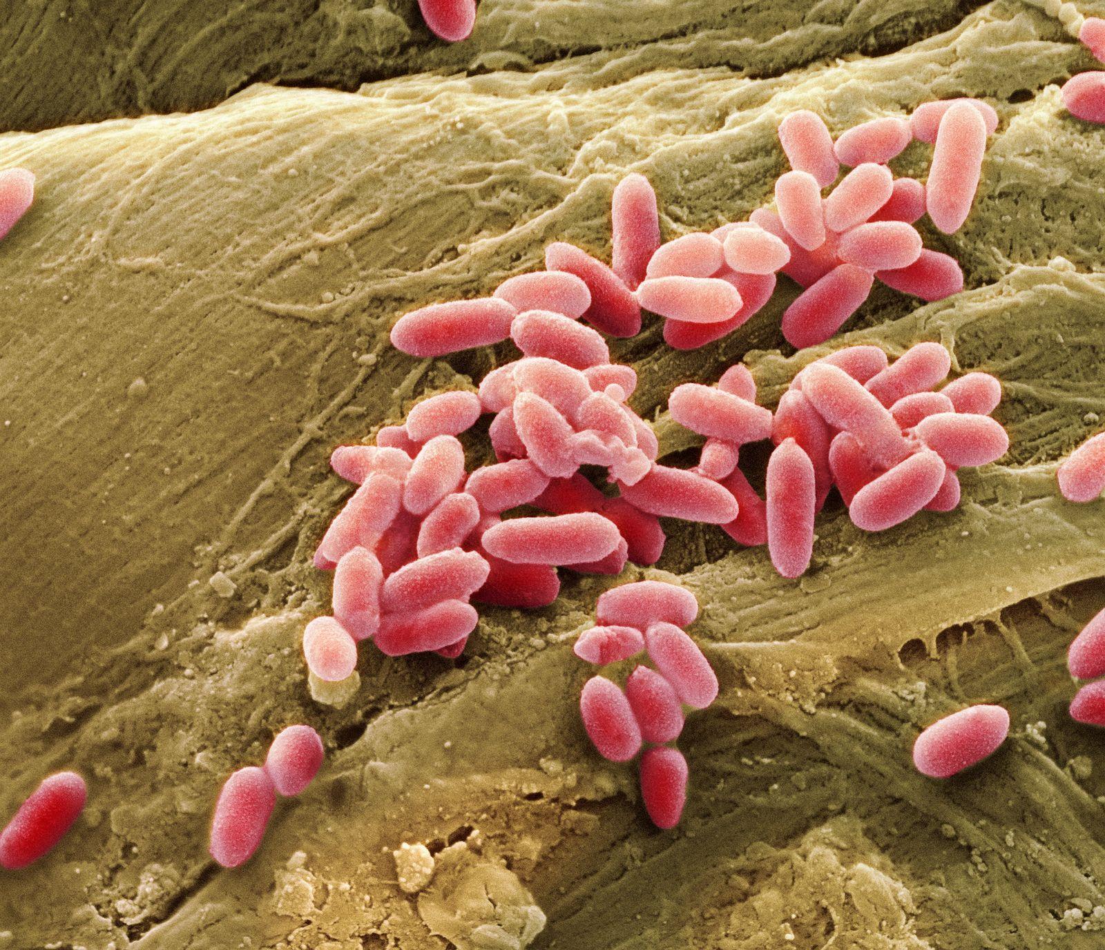 NICHT MEHR VERWENDEN! - Bakterien/ Pseudomonas aeruginosa
