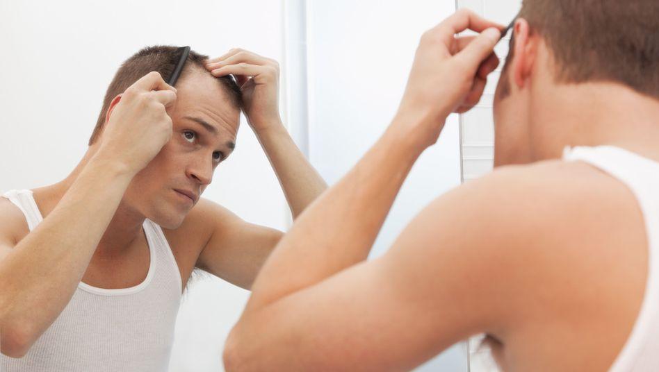 Genetisch bedingter Haarausfall: Irgendwann trifft's fast jeden Mann