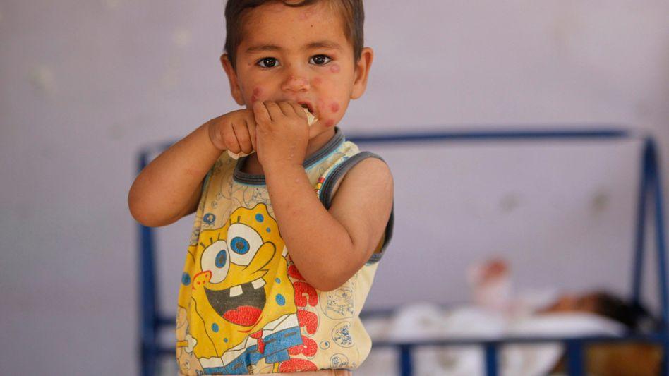 Kind mit kutaner Leishmaniose: Sandfliegen übertragen die Erreger