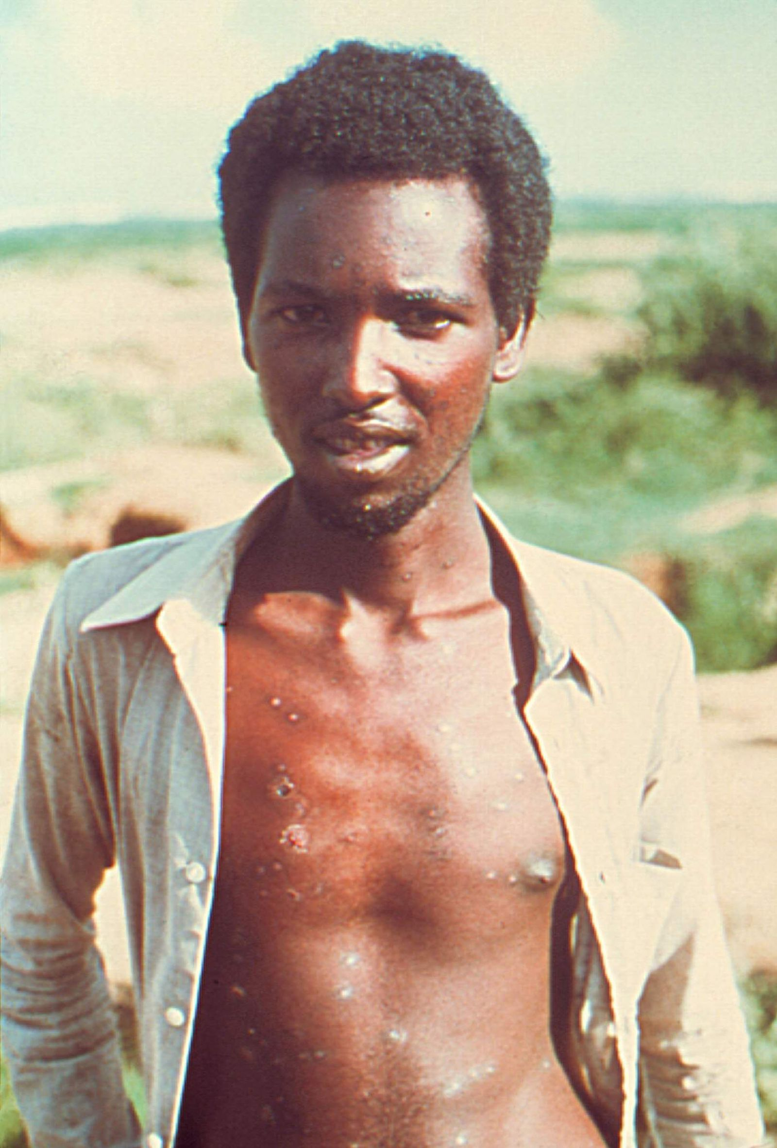 Twenty Three Year Old Ali Maow Maalin The Last Known Person In The World With Smallpox