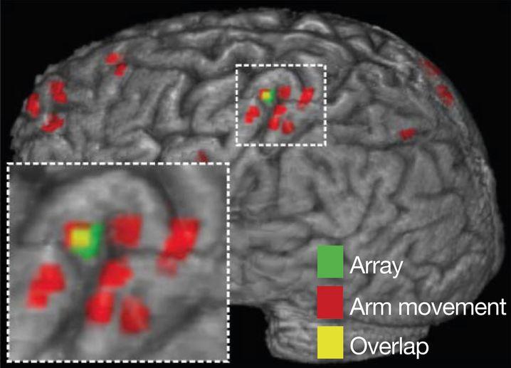 Chip (grün), Bereiche für Armbewegungen (rot), Überlappung (grün)