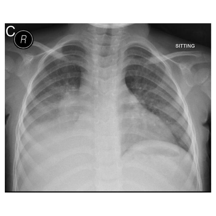 Zweite Röntgenaufnahme: Die linke Bildhälfte zeigt die rechte Körperseite, im unteren linken Bildviertel stellt sich die Lungenentzündung weiß dar