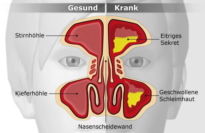 Erkrankte Nasennebenhöhlen: Geschwollene Schleimhäute, verstopfte Durchgänge