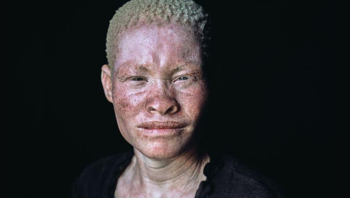 Malawi: Wo Menschen mit Albinismus getötet werden