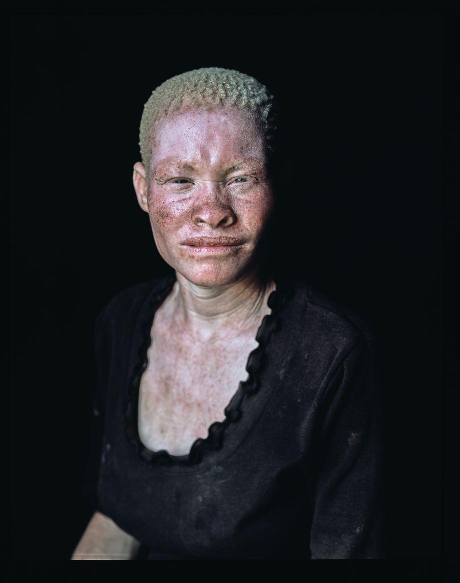 Malawi Menschen mit Albinismus werden verfolgt   DER SPIEGEL