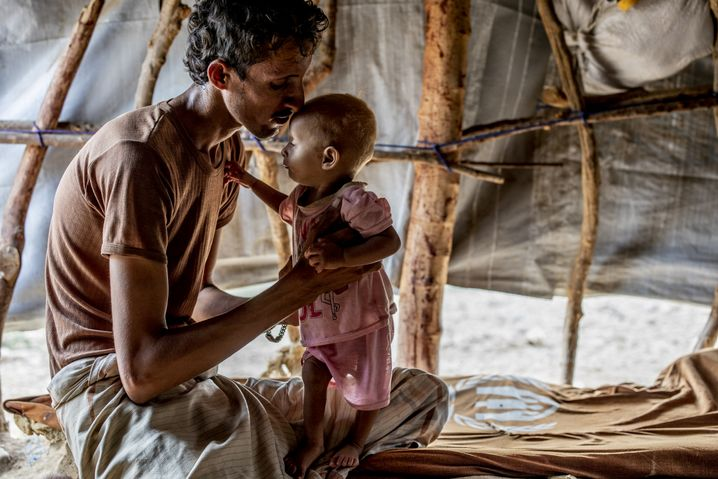 A man with his malnourished son in a camp for the internally displaced in Yemen