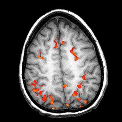 Hirnscan: Gedanken sichtbar machen