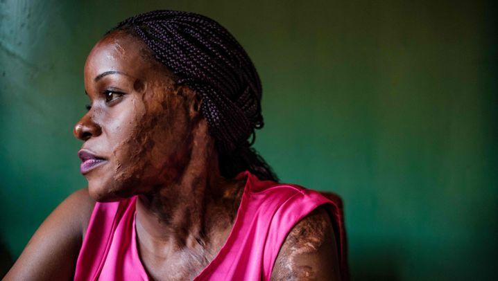 Säureangriffe auf Frauen in Uganda