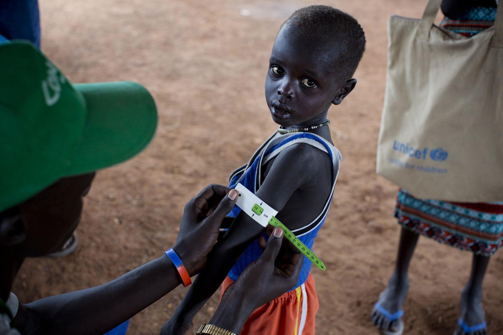 Akute Hungersnot im Südsudan