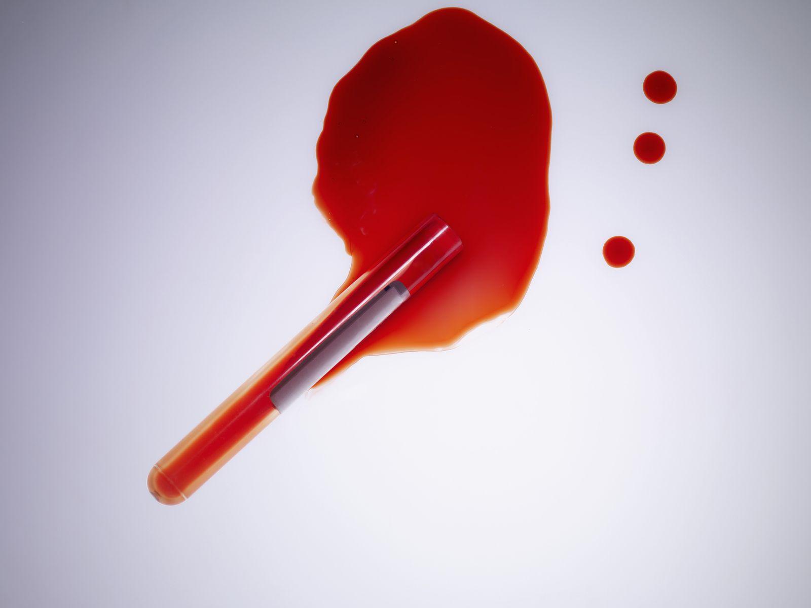 NICHT MEHR VERWENDEN! - Blutgruppe