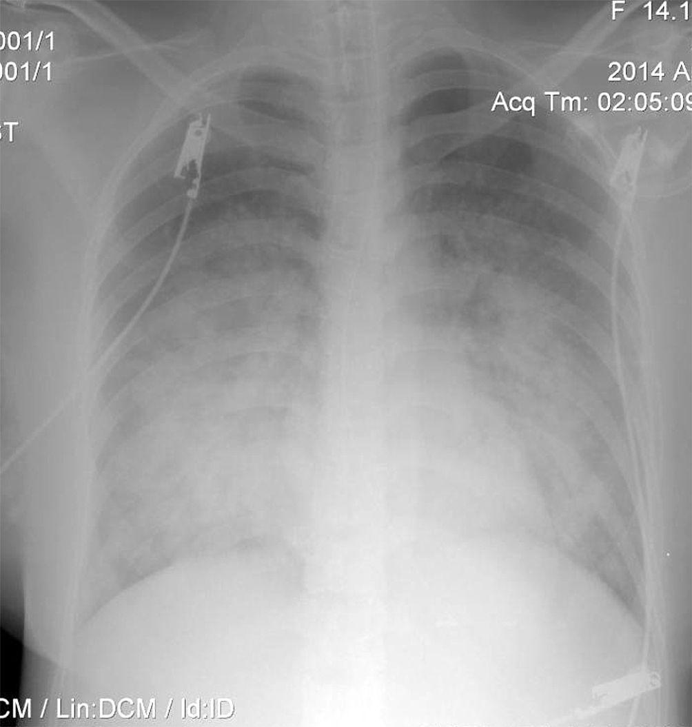 EINMALIGE VERWENDUNG Rätselhafter Patient/ Lunge