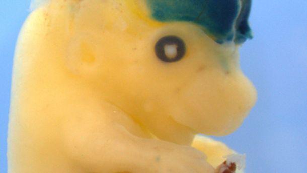 Mäuse-Embryo: Menschliche DNA-Abschnitte ließen sein Hirn deutlich wachsen