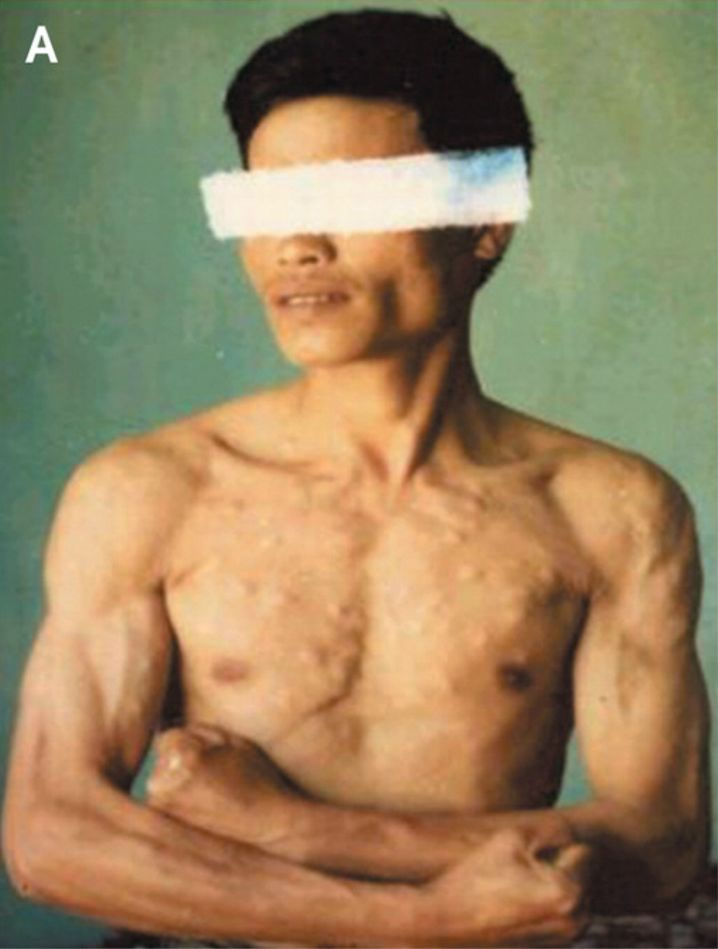 Rätselhafter Patient: Knoten in Haut, Muskeln und Gehirn