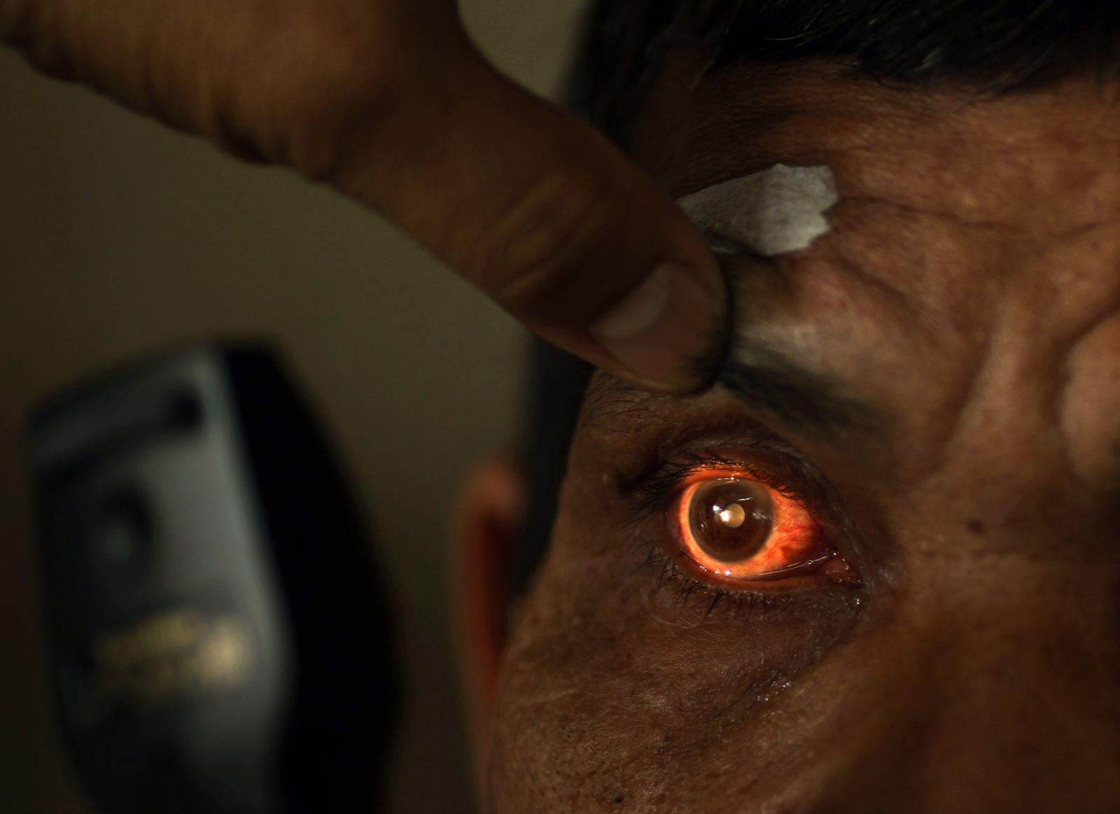 Auge / Augenuntersuchung / Blindheit