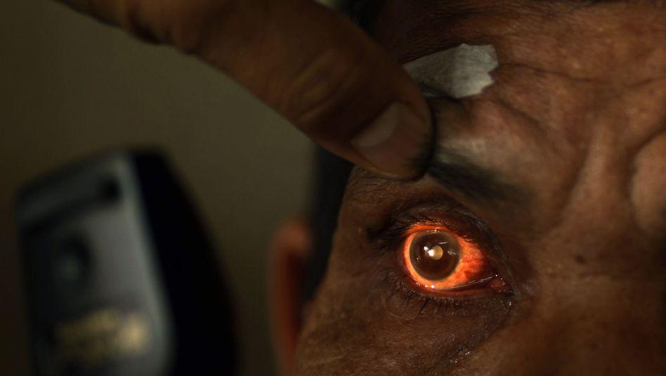 Augenuntersuchung (in Indonesien): Kann Gentherapie vererbte Erblindung stoppen?
