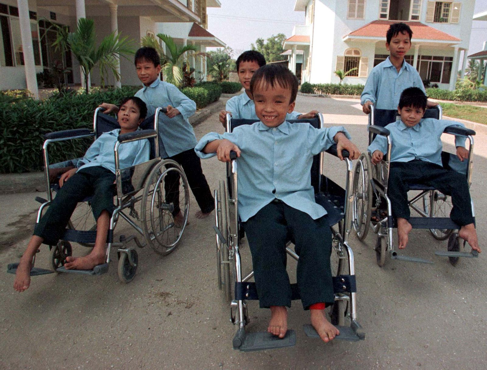 Vietnamese children who doctors say are suffering from birth defects due to their parents' exposure ..
