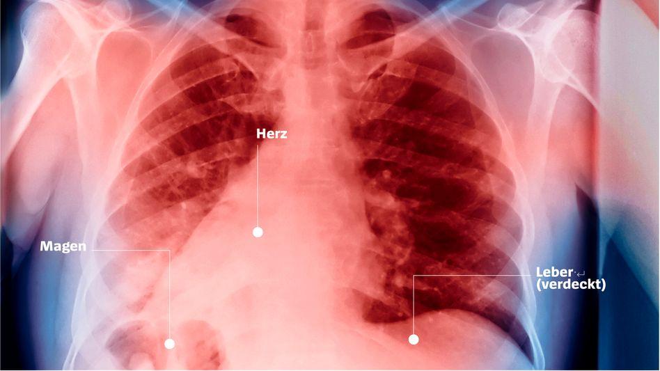 Röntgenaufnahme eines Patienten mit falsch platzierten Organen