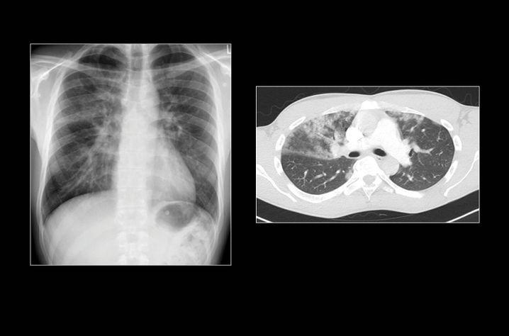 Im Röntgenbild (links) fallen den Ärzten in den oberen Lungenflügeln vermehrt weißliche Streifen auf (die mit Luft gefüllten Lungen stellen sich im Röntgenbild normalerweise schwarz da). Auch in der Computertomographie (rechts) sind weißliche Veränderungen zu sehen.