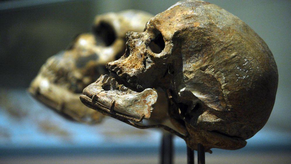 Großhirn und Kleinzahn: Je größer der Schädel desto kleiner der Zahn