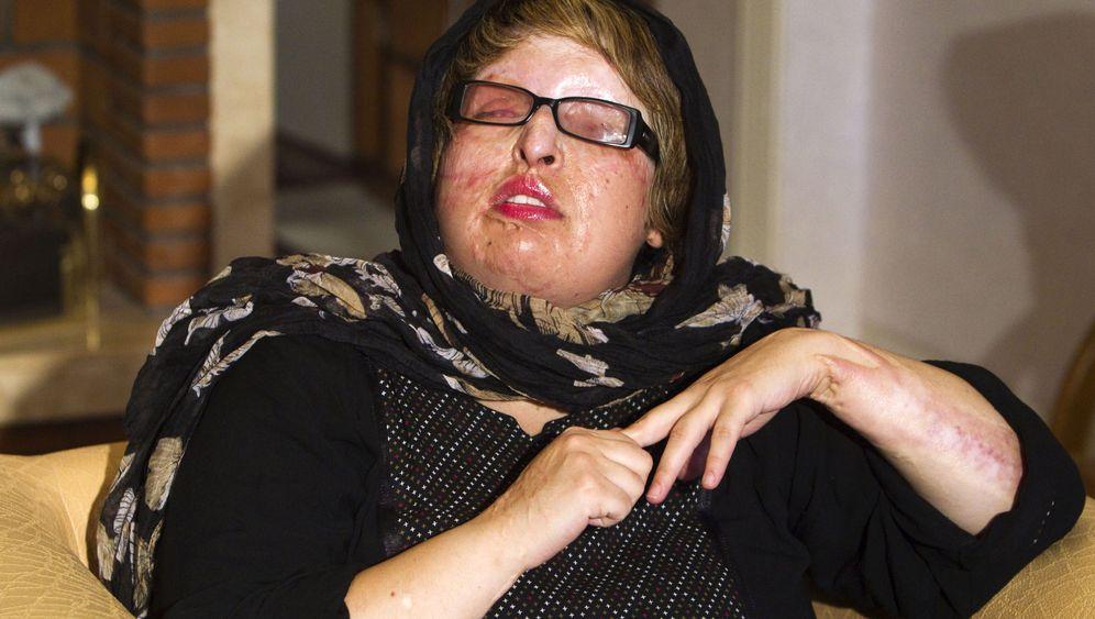Säureopfer Bahrami: Vergebung in letzter Minute