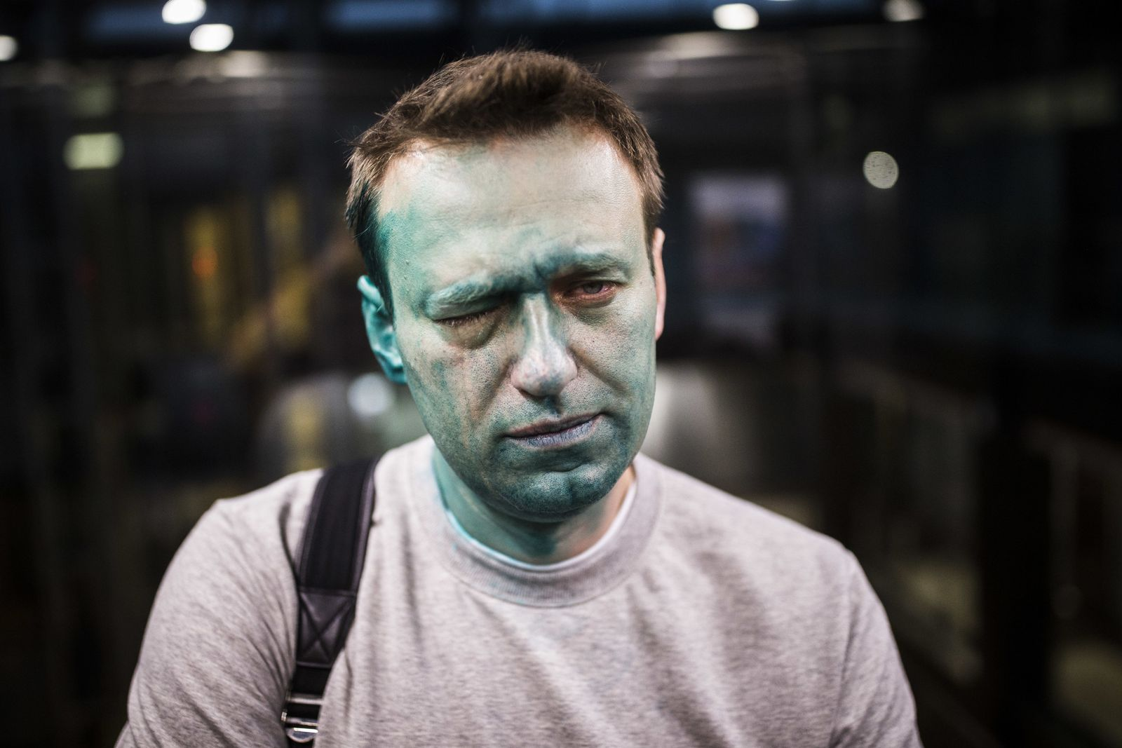 Alexej Nawalny / Farb-Attacke / Zeljonka