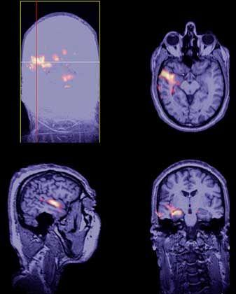 Hirnaktivität bei Epilepsie: Vermehrt berichteten Patienten von außerkörperlichen Erlebnissen