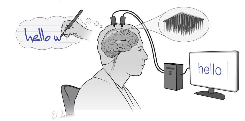 Diese Illustration zeigt, wie das Prinzip funktioniert: Die Testperson denkt an einzelne Buchstaben, ein Implantat erfasst das Signal, das am Computer in den Buchstaben übersetzt wird
