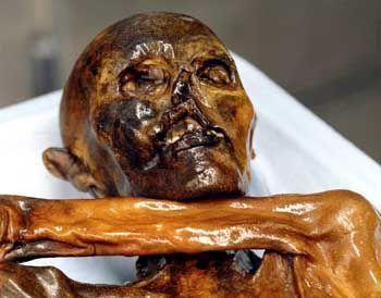 Knie-Patient Ötzi