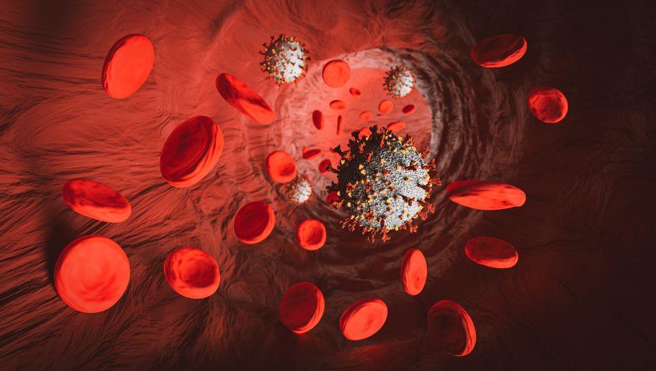 Das Coronavirus in einer Vene mit Blutzellen: Covid-19 kann das Blut verklumpen