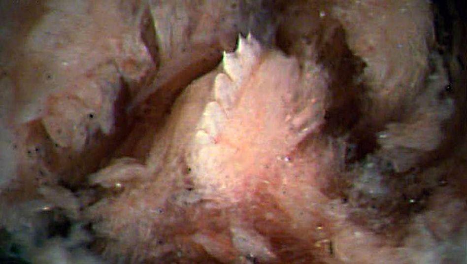 Mikroskopaufnahme Tyrannobdella rex: Kiefer mit sehr großen Zähnen