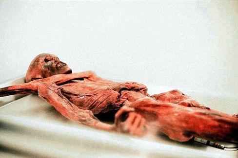 Gletschermumie Ötzi: Pfeilspitze unter der linken Schulter