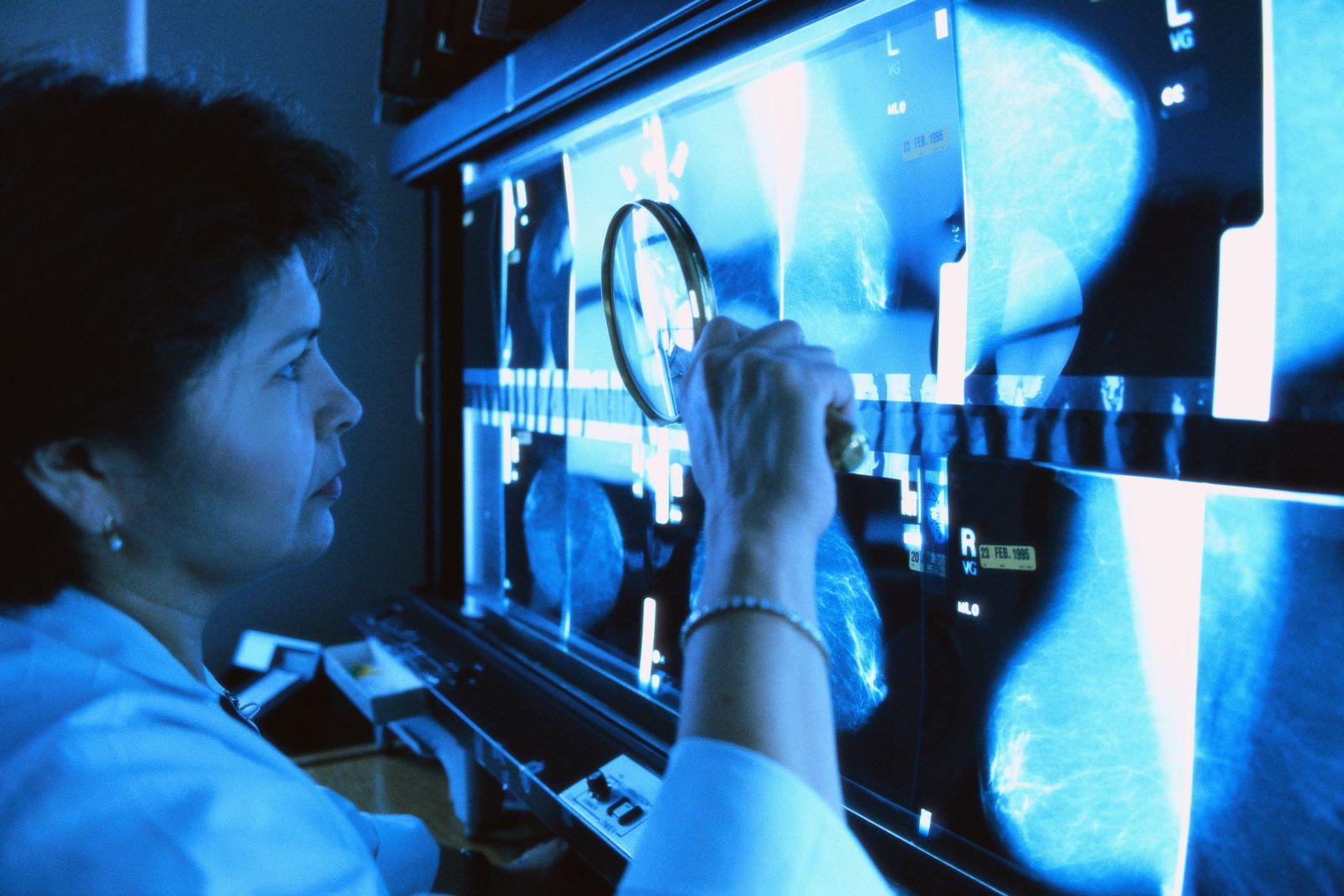 NICHT MEHR VERWENDEN! - Mammografie / Brust Krebs