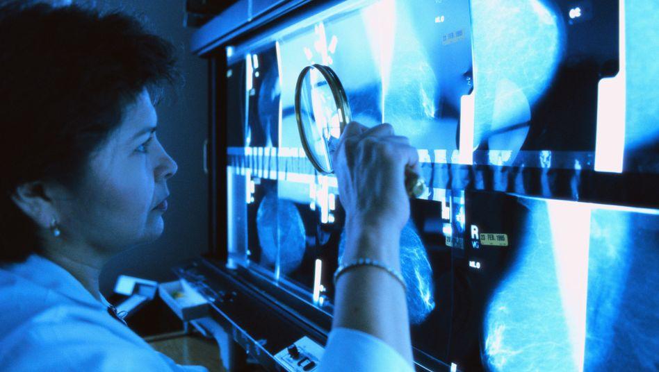 Ärztin untersucht Mammografie-Bilder: Die Zweifel am Sinn des Brustkrebs-Screenings mehren sich