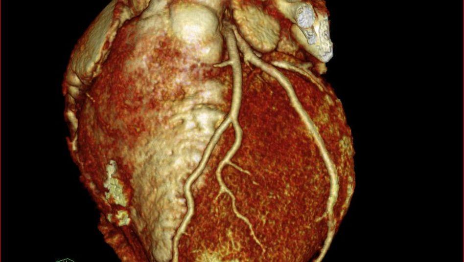 CT-Aufnahme eines Herzens: Jährlich sterben europaweit 750.000 Menschen am Infarkt