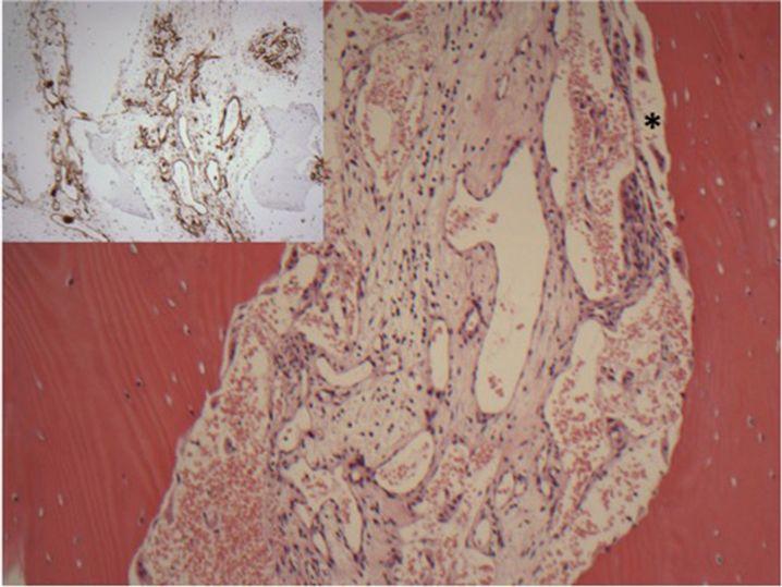 Das verletzte Gewebe unterm Mikroskop