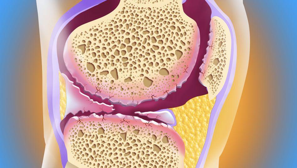 Arthrose im Knie (Illustration): Spülung und Knorpelglättung per Arthroskopie häufig ohne Nutzen