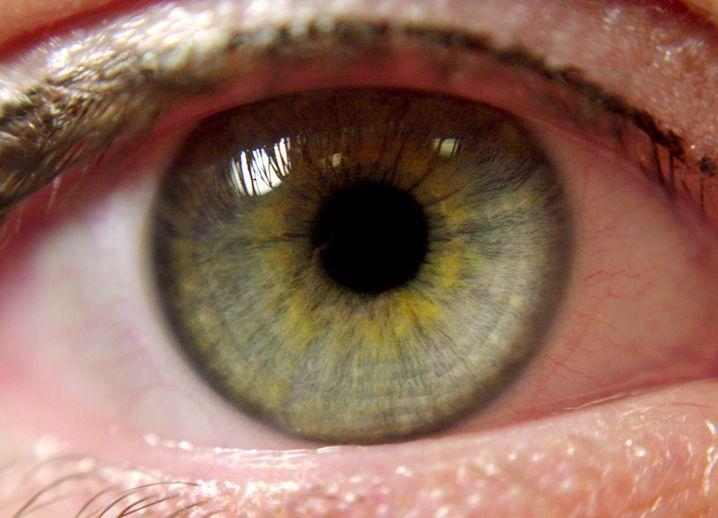 Die häufigste IGeL: Die Augeninnendruck-Messung