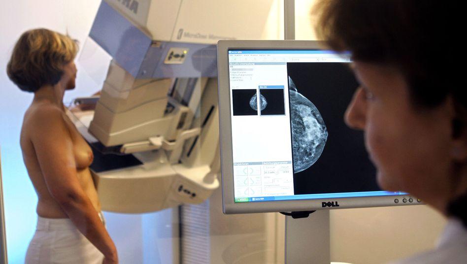 Brustkrebs-Früherkennung: Einheitliche Krebsregister sollen die Qualität verbessern helfen