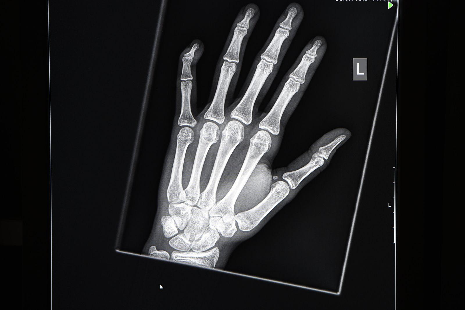 Röntgenbild/ Flüchtlinge/ Altersbestimmung