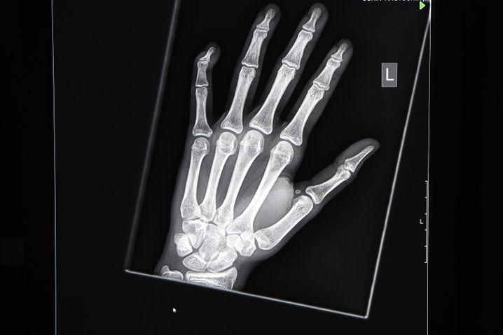 Röntgenbild des Handwurzelknochens: Zwischen 16 und 19 Jahren