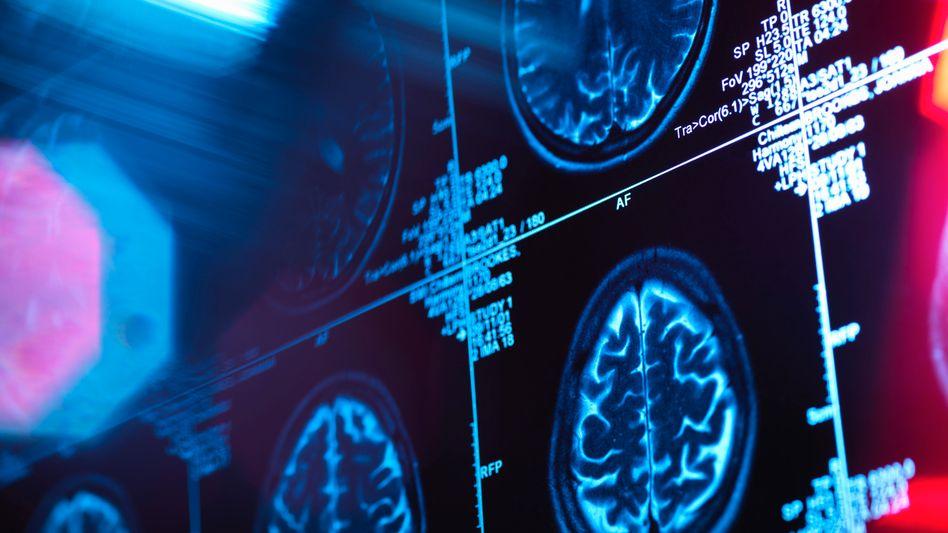 Bisher lässt sich Alzheimer vor allem durch Gehirnscans frühzeitig erkennen