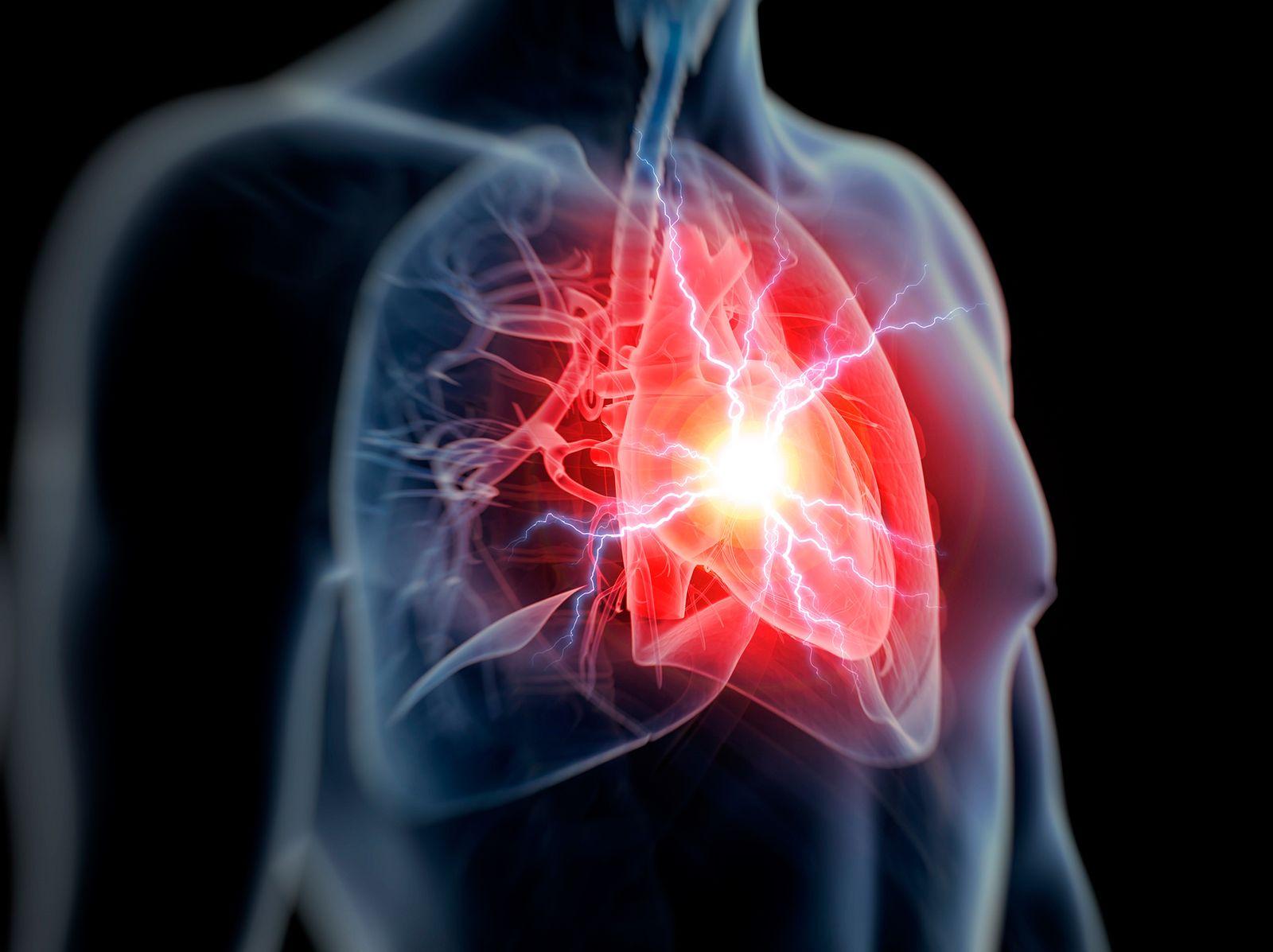 NICHT MEHR VERWENDEN! - Takotsubo-Syndrom/ Herzschmerz