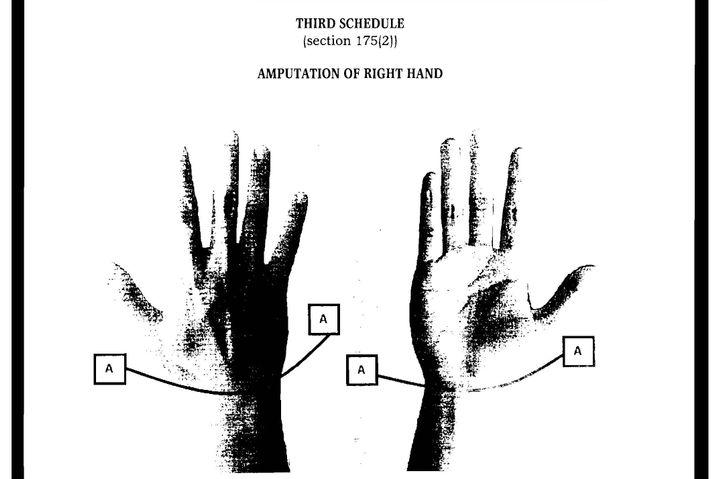 Anleitung dazu, wie Dieben in Brunei künftig die Hand abgeschnitten werden soll.