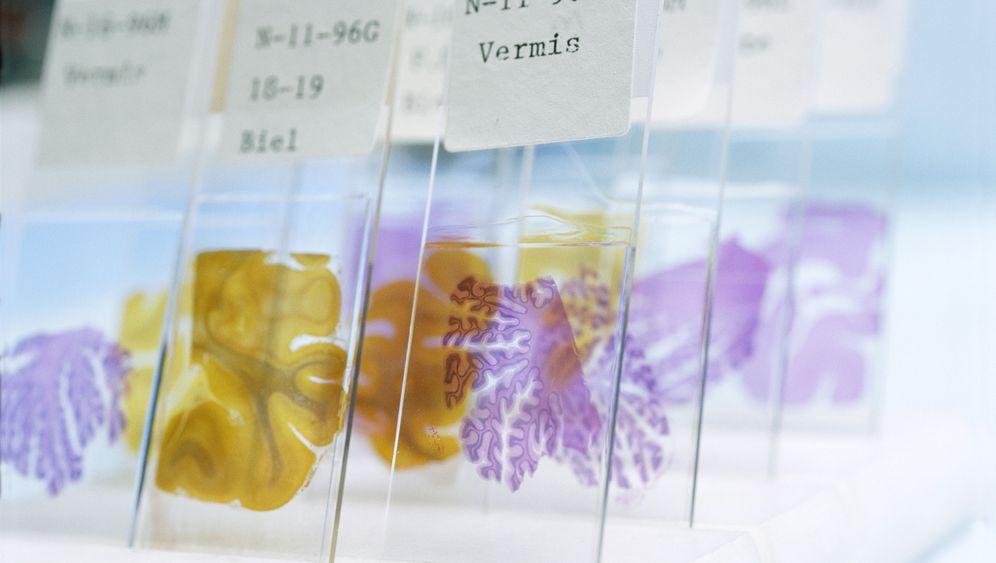 Alzheimer: Forscher fahnden infektiösen Alzheimer-Molekülen