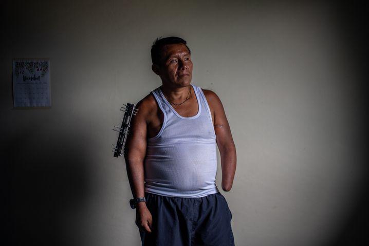 Ex-commander Julio Eduardo Gutierrez lost an eye and a hand when a landmine exploded beneath him.