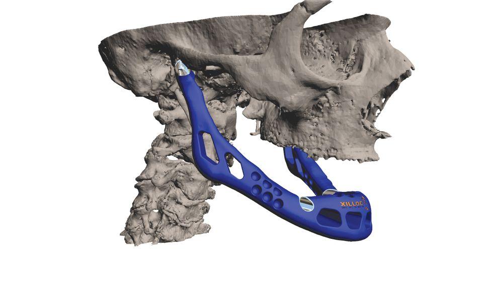 Knochenersatz: Neuer Unterkiefer aus Titan